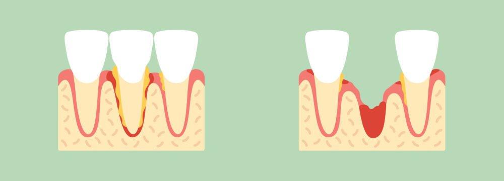 как вовремя выявить осложнение после удаления зуба