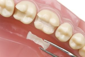 керамическая вкладка на зубную поверхность