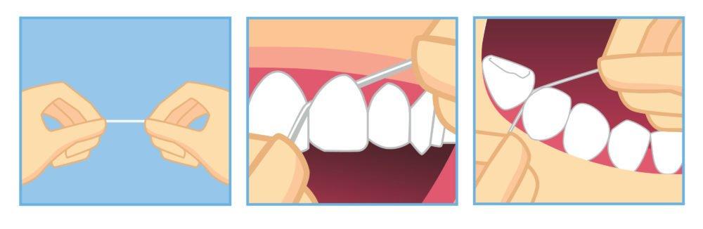 как пользоваться зубной нитью