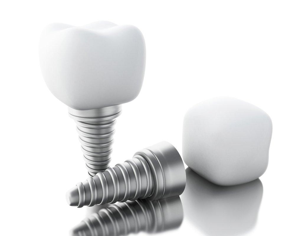 Имплантация зубов – так ли это страшно, как выглядит?