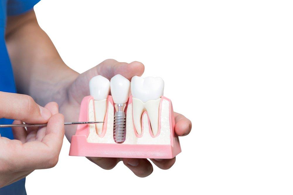 качество и цена: как выбирают импланты стоматологи