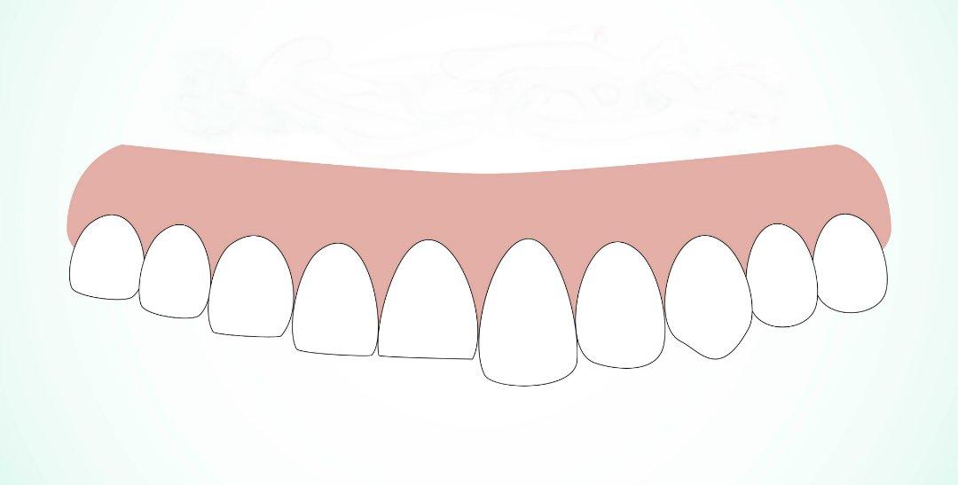 можно ли восстановить красоту улыбки пациентам с короткими зубами