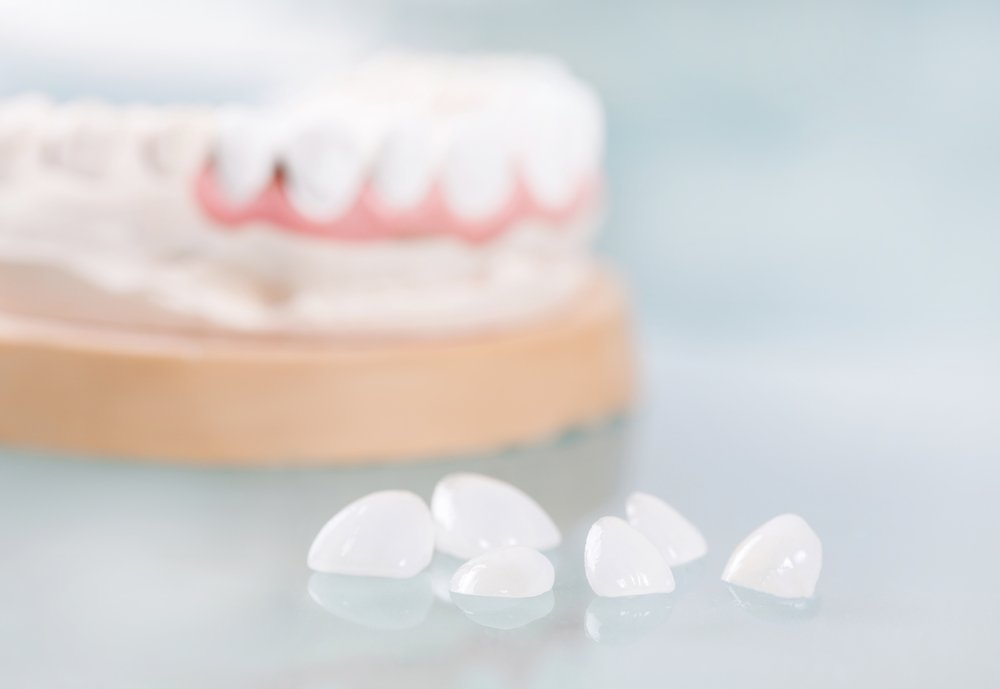 виниры или композитная реставрация зубов