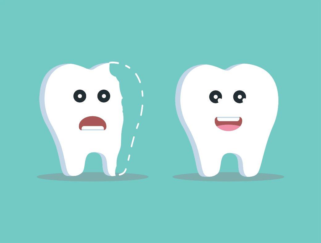 что вызывает трещины и сколы реставраций передних зубов