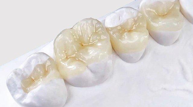 Керамическая вкладка на зуб